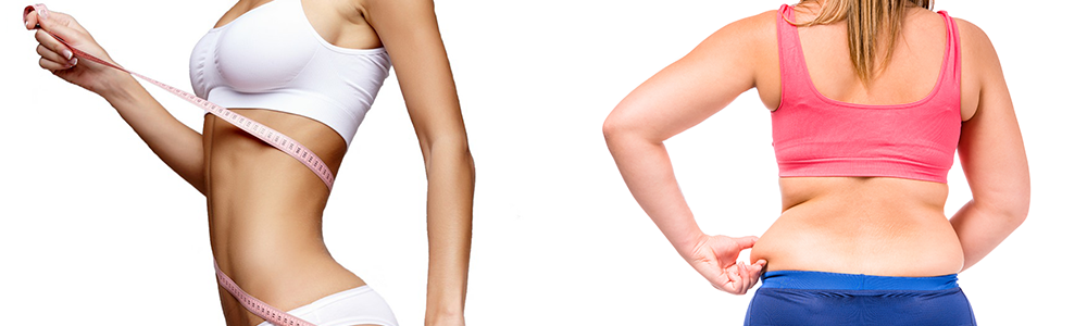 Unwanted Fat | Soma Vein Clinic